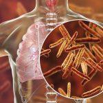 Más muertes por tuberculosis